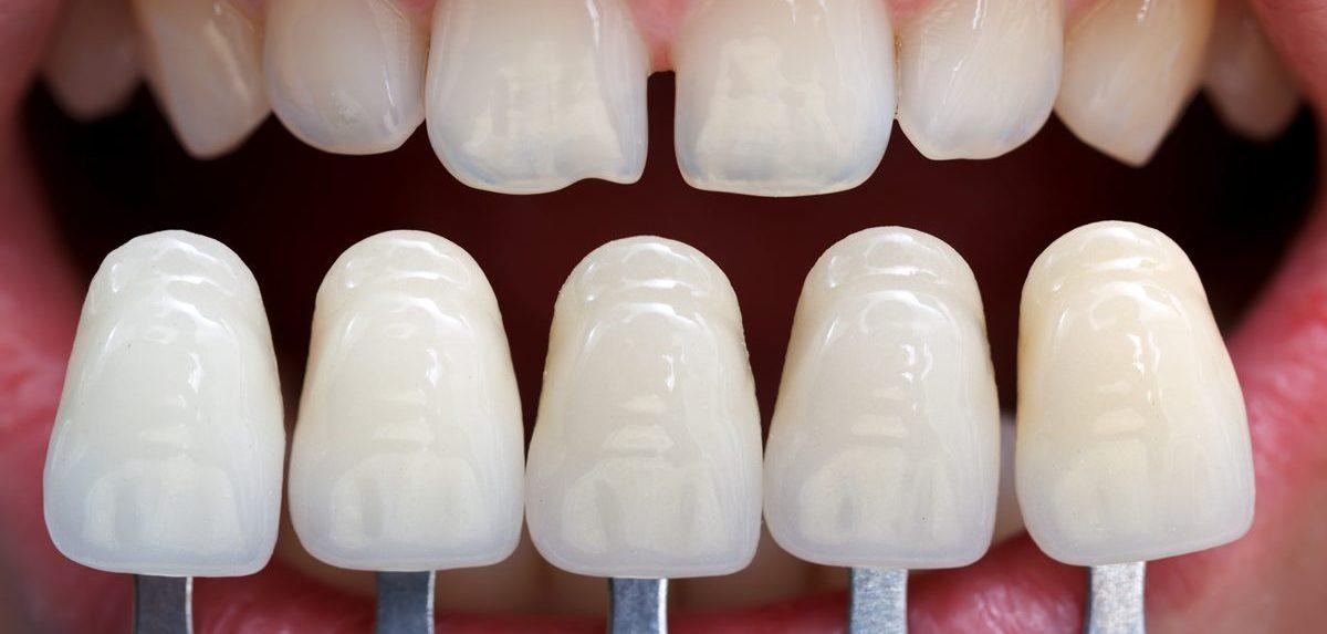 Redwood Dental - Thunder Bay